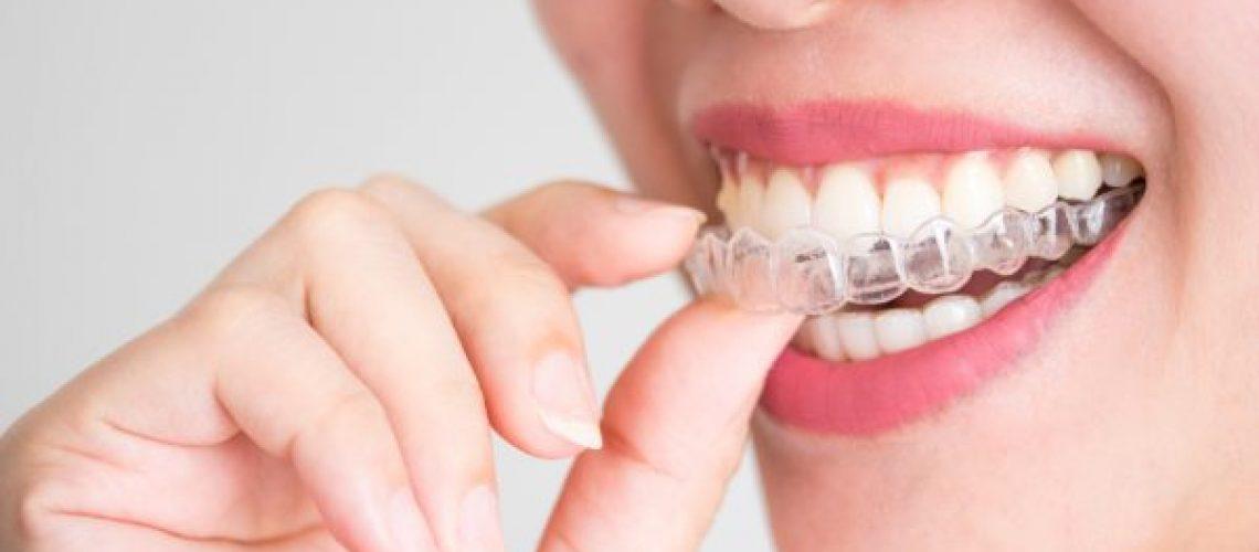 invisalign centropediatrico odontogen